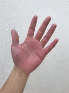 海水温熱セラピーをした手